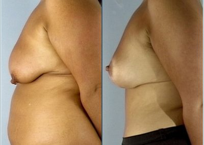 Breast reduction, abdominoplasty and liposuction