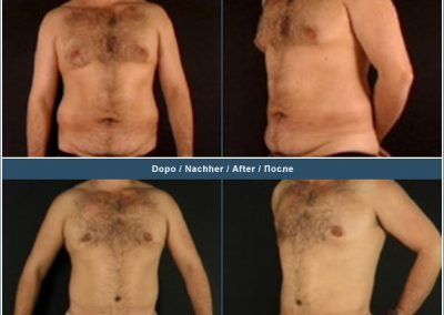 Gynaecomastia, abdominoplasty, and torso liposculpture