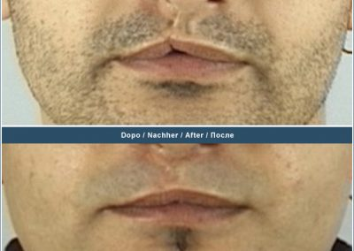 Scar removal on lip