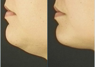 Liposuction under the chin