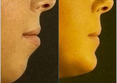 Chin augmentation and reduction of the lower lip