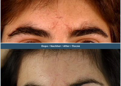 Scar removal on forehead