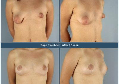 Correction of asymmetry with breast augmentation and breast lift