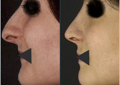 Chin reduction and rhinoplasty