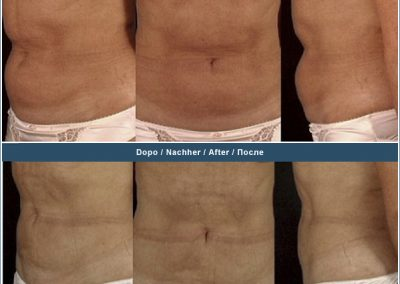 Liposuction abdomen