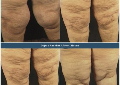 Liposuction knees