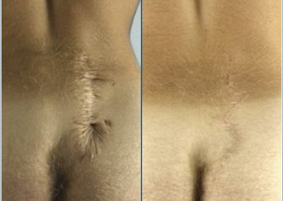 Scar removal on back