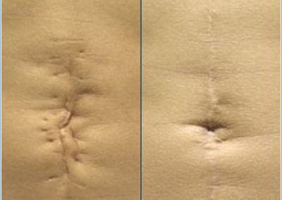 Scar removal on stomach