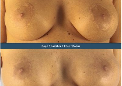 Scar removal on the areola