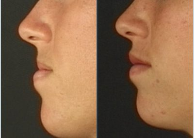 Augmentation of the upper lip with FulFil and surgical reduction of the lower lip